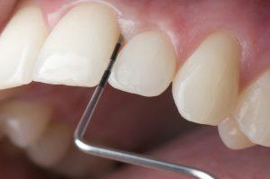 Seit 2004 übernehmen die Kassen alle zwei Jahre die Kosten für einen speziellen Parodontitis-Test. Während des Tests tastet der Zahnarzt mit einer Sonde das Gewebe zwischen Zähnen und Zahnfleisch ab. Er misst die Tiefe der Zahnfleischtaschen und prüft ob eventuell eine Entzündung vorliegt. In schweren Fällen wird der betroffene Kiefer geröntgt, so dass der Zahnarzt sich ein genaues Bild vom Zustand des Kieferknochens machen kann.