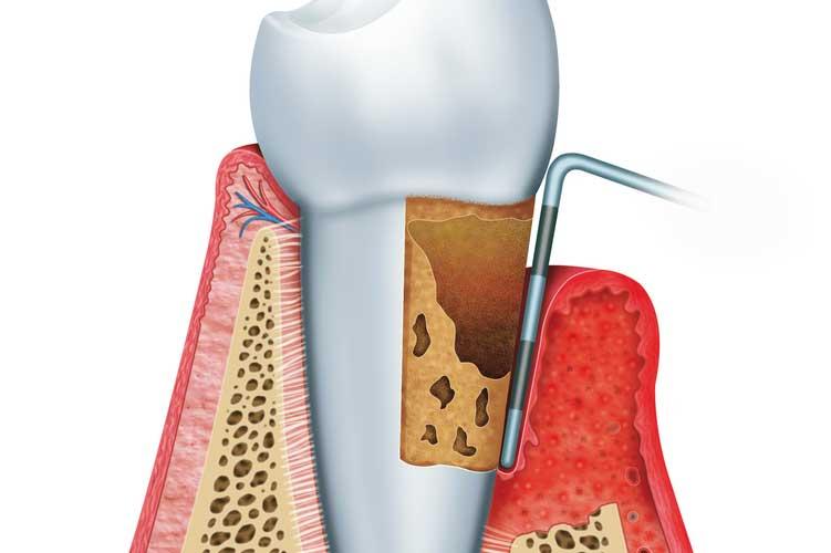 Parodontologie in der Zahnarztpraxis Siekmann in Celle
