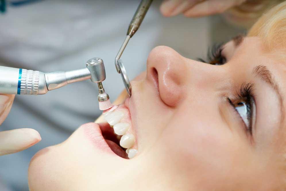 Bild einer Prophylaxe - Zahnarzt Celle