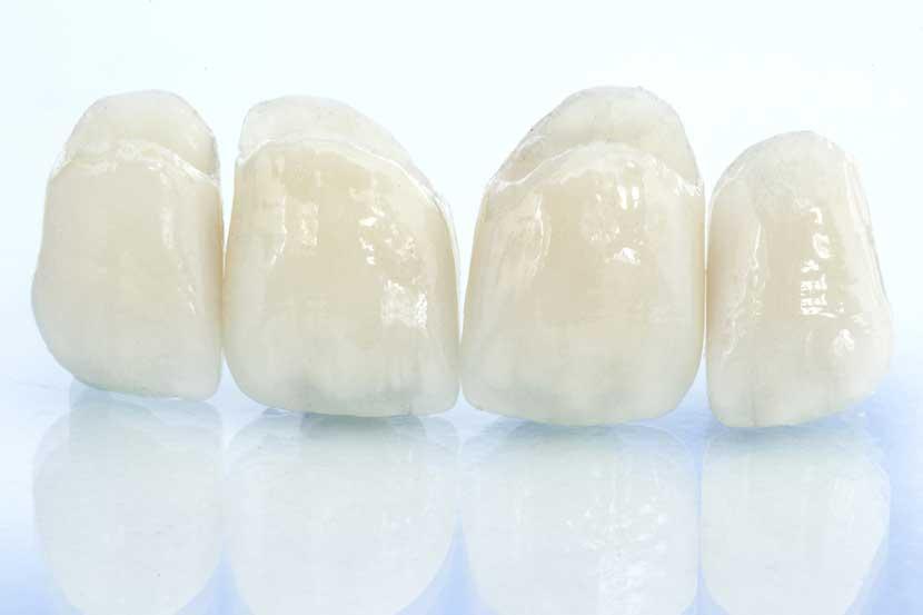 Zahnaesthetik in der Zahnarztpraxis Siekmann in Celle