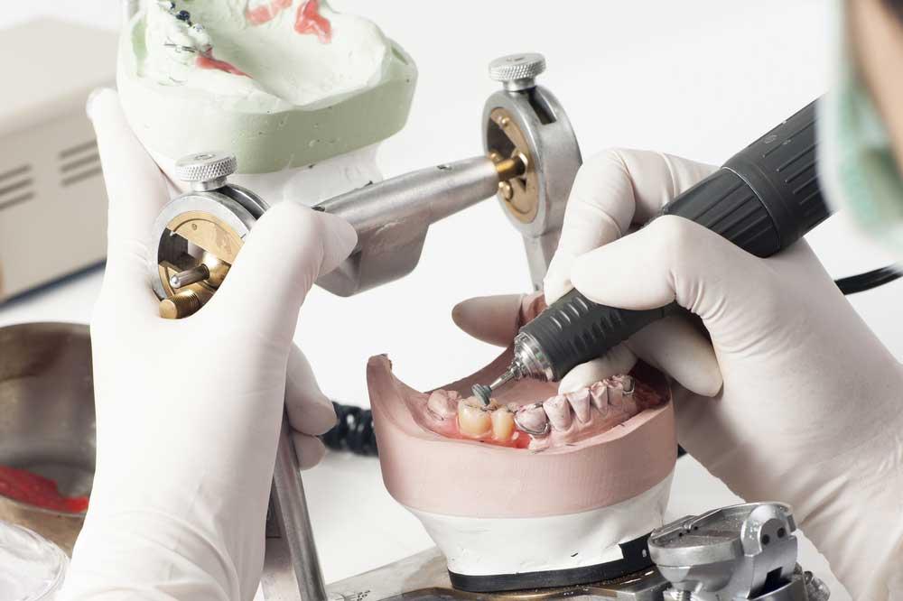 Zahnarzt-Praxislabor in Celle - Zahnärzte Siekmann