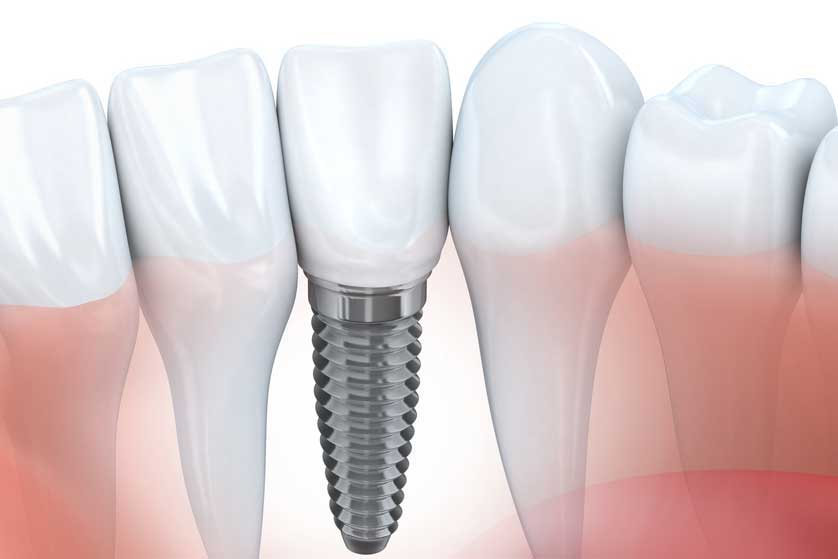 Zahnimplantate in Celle - Praxis Dres. Siekmann